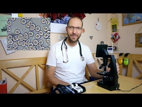 Dunkelfeld-Blutdiagnose (fast) selbst machen mit Mikroskop (Bresser 5201000) [VEGAN]