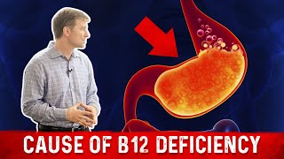The MOST Common Cause of a B12 Deficiency