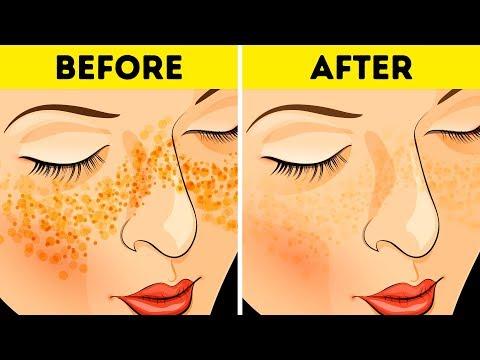 Cream review tungkol sa aming mga ina ng pigment spots