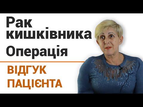 Рак сигмовидной кишки - Лечение, симптомы, диагностика - Киев, Украина - фото 3