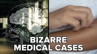 Bizarre Medical Cases That Still Confuse Doctors | Kholo.pk