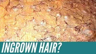 How to get rid of INGROWN HAIRS. Expert tips that will get rid of them for good!