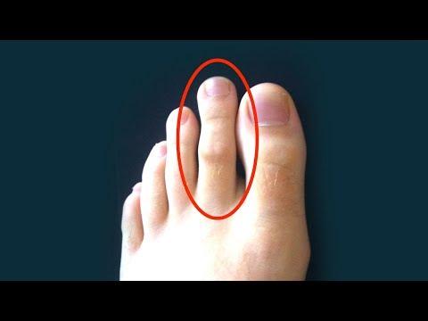 Der Kern zwischen den Fingern
