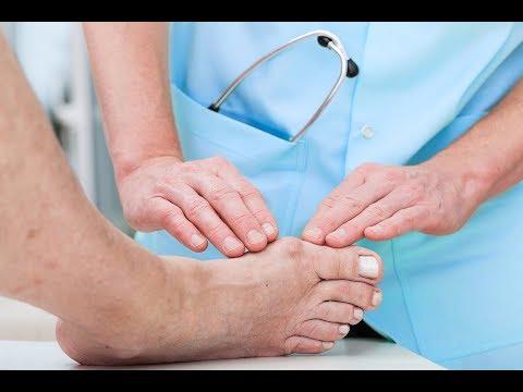 Analisi a raggi di piedi allatto di deformazione valgusny