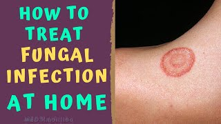 HOW TO TREAT SKIN FUNGAL INFECTION INFECTION AT HOME   TINEA RINGWORM REMEDIES HOW TO CURE