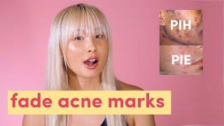 Fade acne marks! Post inflammatory hyperpigmentation & post inflammatory erythema  | PIH & PIE