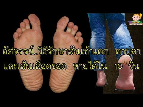 เดิน thrombophlebitis