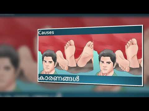 A prostatitis antibiotikumok esetében
