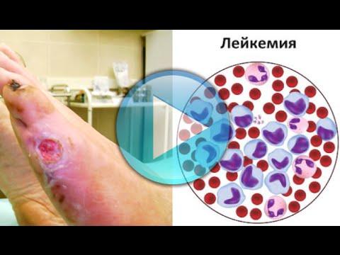 Medicine non costose da un fungo di piedi