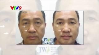 Cắt Mí Mắt Dưới JW – Công Nghệ Midface 3 in 1