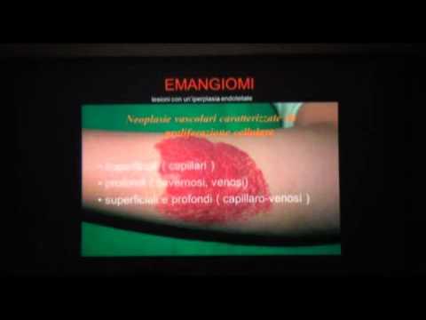 Tintura varicosity castano