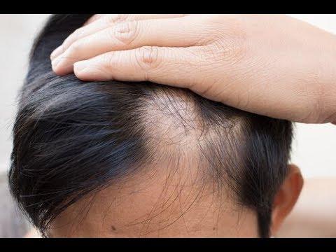 Die Maske für das Haar vom Vorfall von der Aloe und nikotinowoj vom Acidum