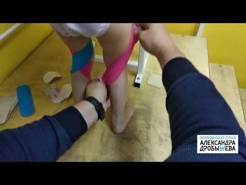Рекурваця коленных суставов, переразгибание коленных суставов, гипермобильность