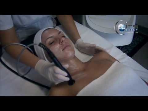 Il varicosity dopo gravidanza che fare