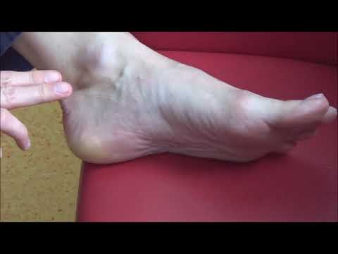 Venarus da un varicosity di una piccola pelvi