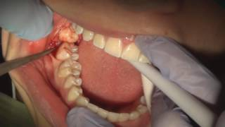 How to pull a wisdom tooth fully impacted