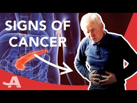 Papiloma cancer de cuello