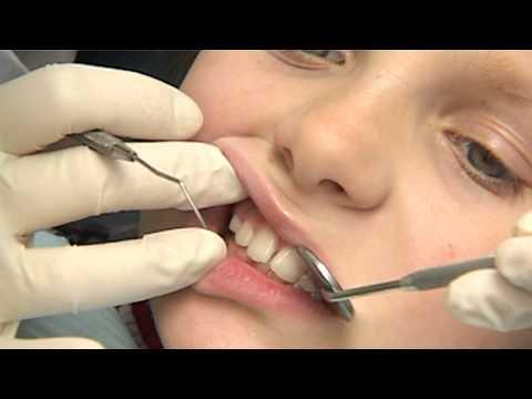 Paauglių dantų balinimas, auskarai liežuvyje ir šių veiksmų pasekmės?