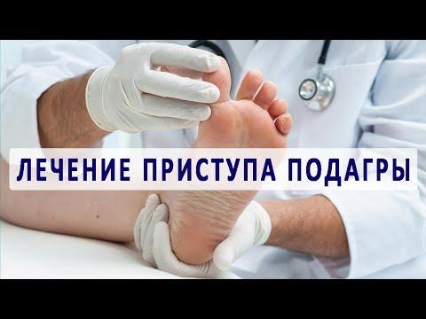 Лечение подагры при обострении
