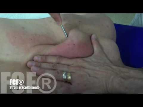 Quanto è il funzionamento del ginocchio Krasnoyarsk congiunta