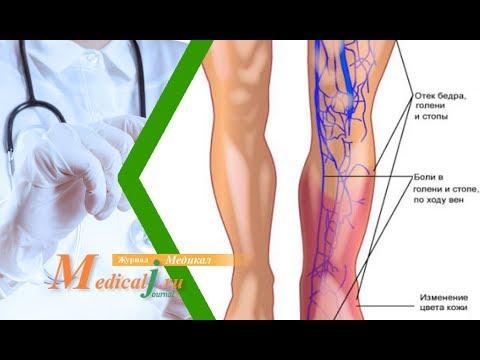 Симптомы тромбофлебита вен ног