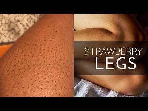 Strawberry Legs – Razor, Wash, AHA Lotions, Dry Brush Review