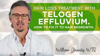 Telogen Effluvium Hair Loss – What is it? How To Fix It Fast