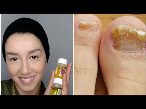 Como curar correctamente el hongo de la uña en el pie