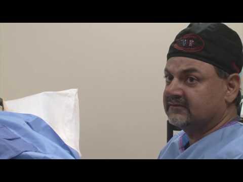 MAPO di chirurgia vascolare