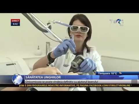 Cum putem scapa de onicomicoza: Tratament cu laser la clinica Fazzada