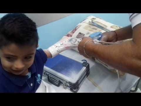 El acceso a la cápsula articular de la articulación