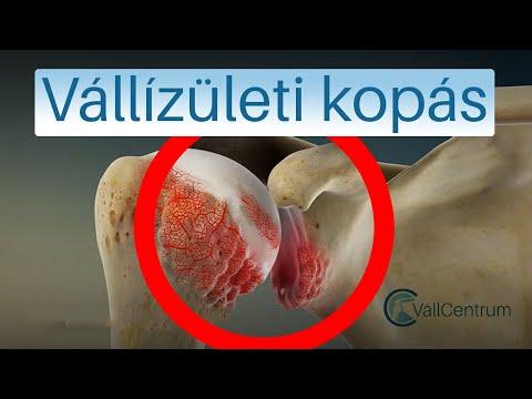 A vállízület deformáló artrózisának radiológiai jelei