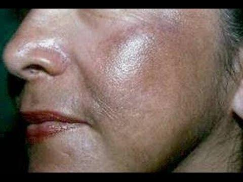 Sa 27 taon, ang mga wrinkles sa ilalim ng mga mata