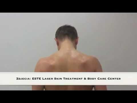 Osteochondrosis szyi ćwiczenia