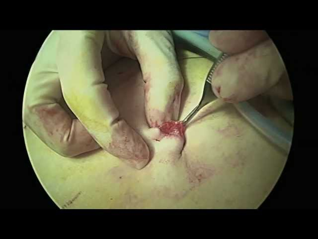Direct Trocar Entry into Umbilicus