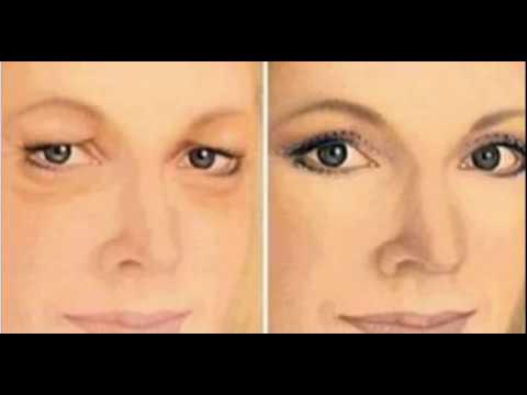 Отбеливающие маски для лица от пигментных пятен из белой глины