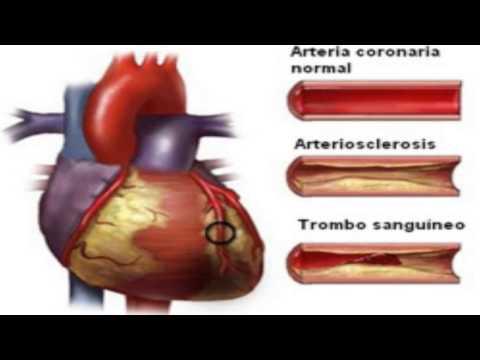 Recomendaciones GFCF para el tratamiento de la hipertensión esencial