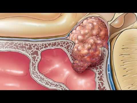 Térdízületi kezelés ii. fokozatú szinovitisz gonartrózisa
