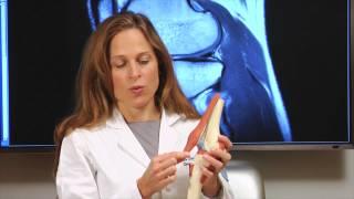 Dr. Sabrina Strickland explains Tibial Tubercle Osteotomy