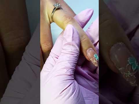 Durere în articulația genunchiului drept pe dreapta