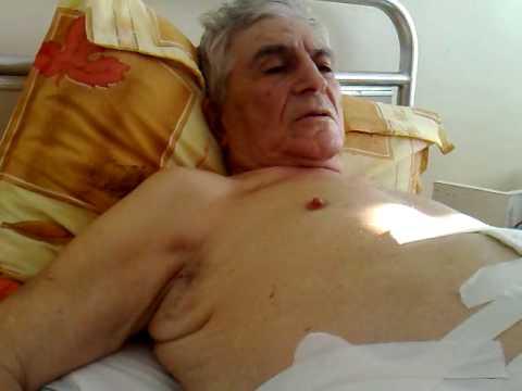 Chirurgia cancerului de prostata sau de hormoni