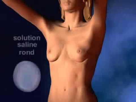 Les actions selon la plastique de la poitrine