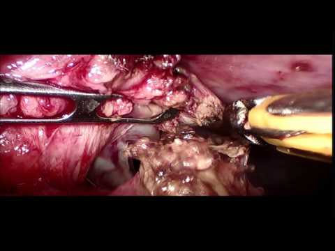 Acute Perforated Appendicitis with Peritonitis
