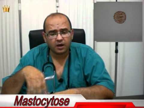 La douleur dans les articulations au psoriasis