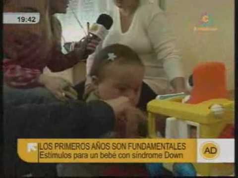 Watch videoSíndrome de Down: Atención temprana