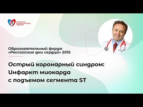 Острый коронарный синдром: Инфаркт миокарда с подъемом сегмента ST