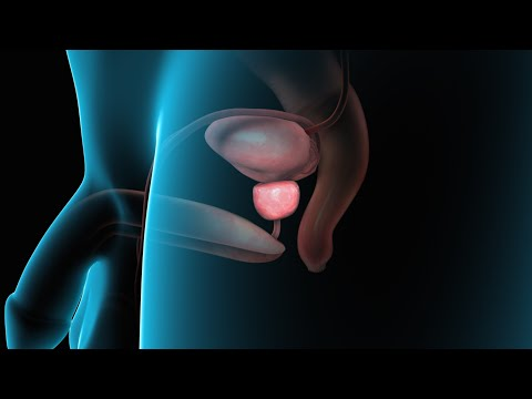 Prostate problems due to bowel
