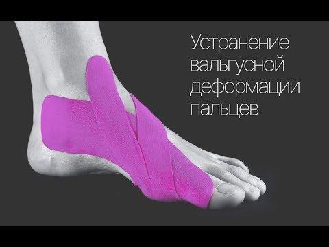 На пальцах ног появились шишки что делать