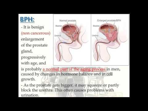 Milyen fertőzések a prostatitis