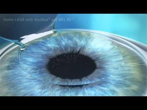 Supradine a látáshoz